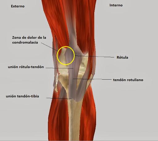 Tendinitis rotuliana el blog de biofisio - Dolor en la parte interior de la rodilla ...